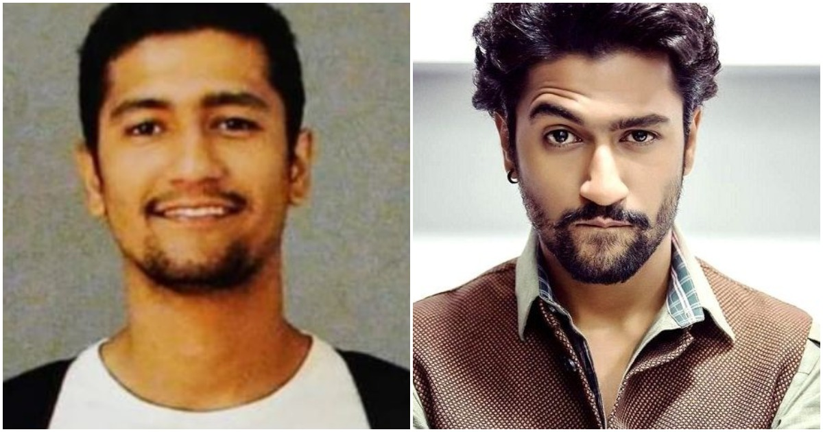 Photo of Here's How Vicky Kaushal, THE BOY WITH BAD TEETH Conquered Bollywood