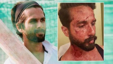Photo of A Ball Hit Injury On Jersey Sets Leaves Shahid Kapoor With 13 Stitches. He's Fine Now
