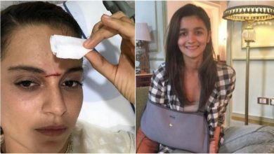 Photo of 7 Bollywood Actors Who Suffered From Injuries During the Making of The Film